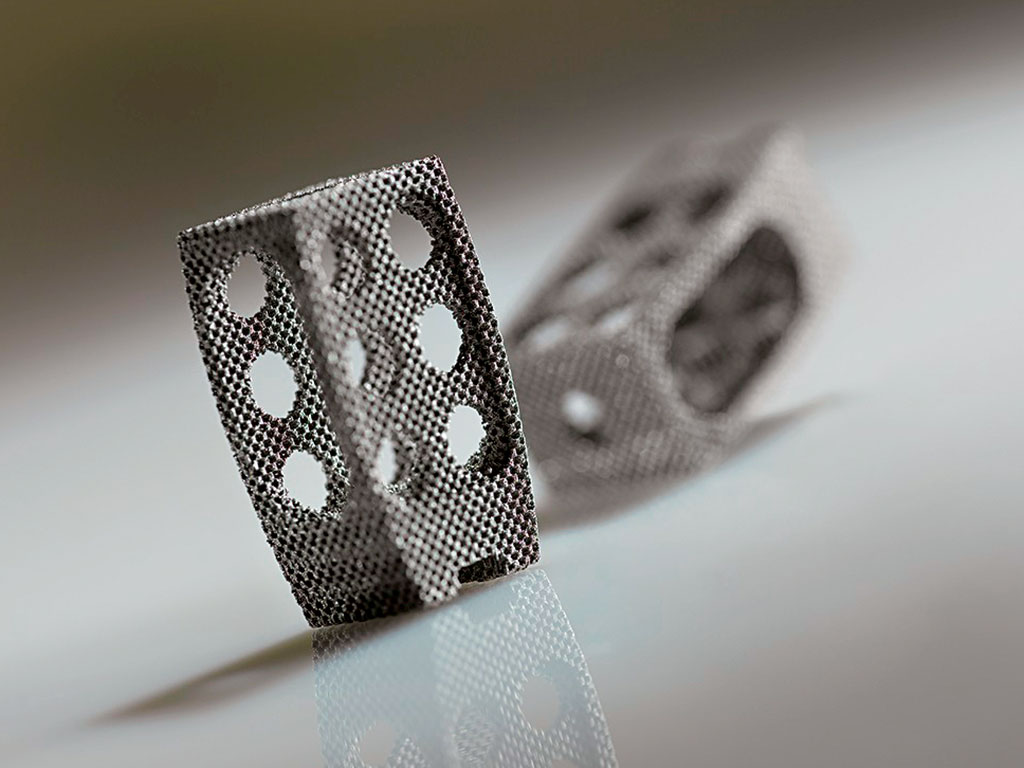 An additively manufactured titanium mesh spinal cage. Source: Concept Laser